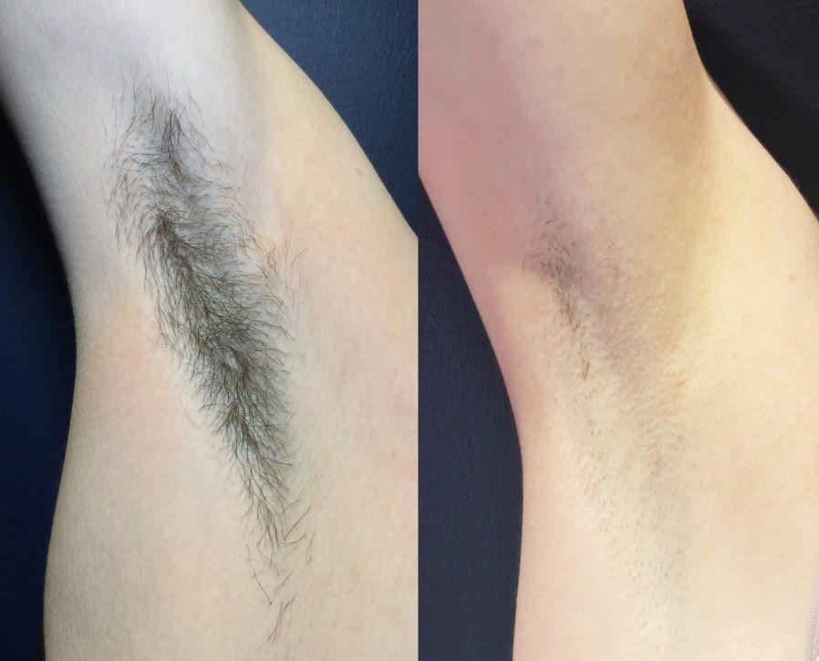 تاثیر استفاده از لیزر در رفع موهای زائد