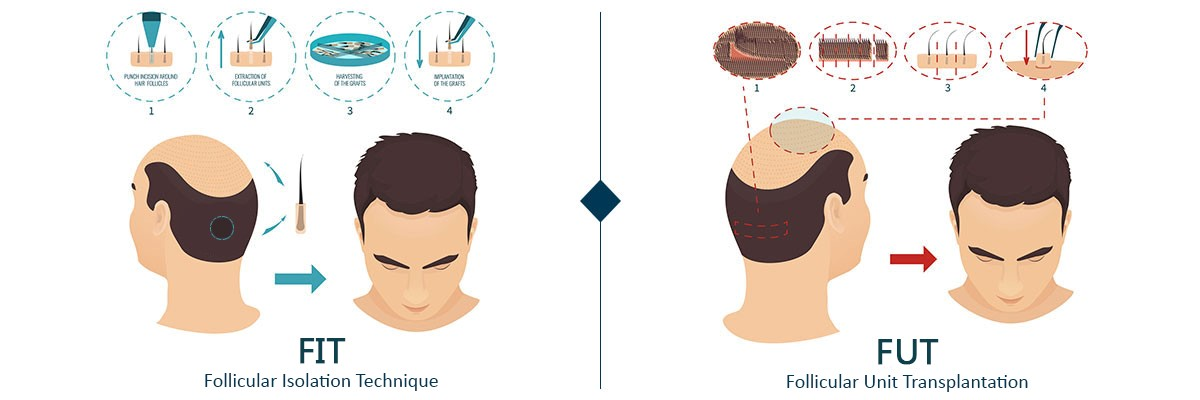 روش FIT و FUT در کاشت مو
