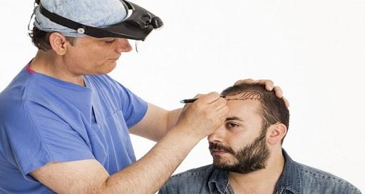 کاهش هزینه های کاشت مو