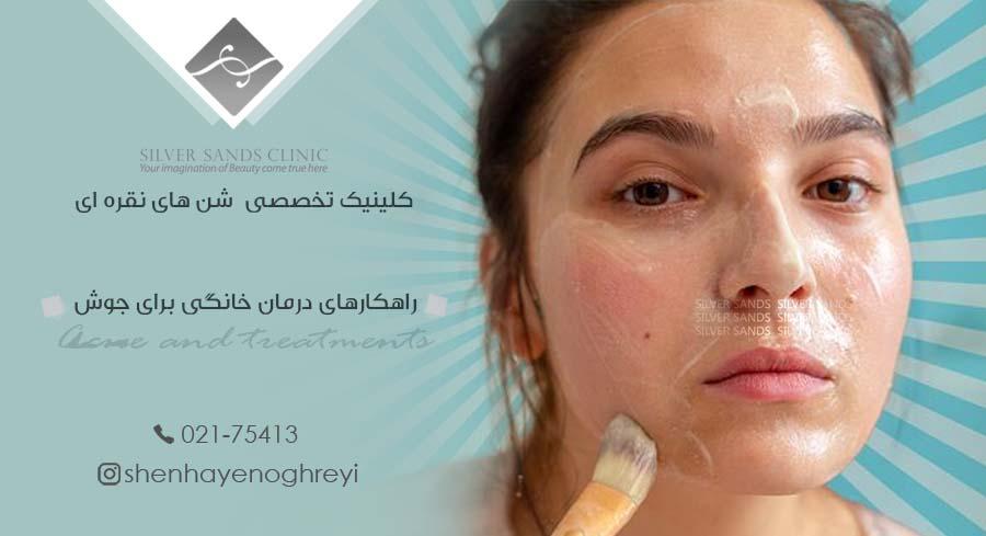 راهکارهای درمان خانگی برای جوش صورت