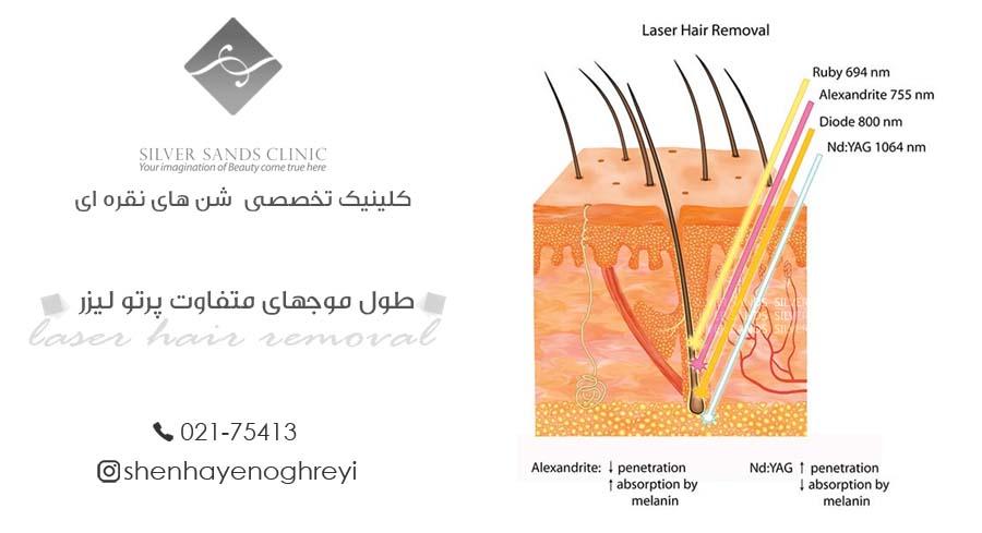 طول موجهای متفاوت پرتو لیزر و محل اثر آنها در مو