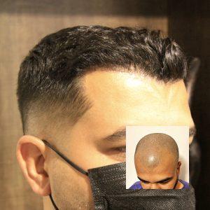 آیا کاشت مو دائمی است؟