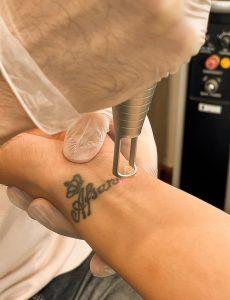 پاک کردن تاتو با لیزر مراحل، مزایا و عوارض